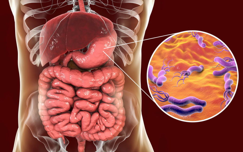 Шлаки и токсины – причины болезней