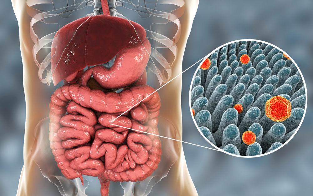 Гидроколонотерапия - Очищение кишечника